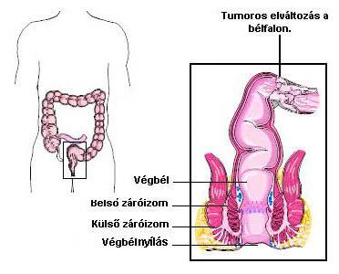 Tumormarkerek | moveinstudio.hu
