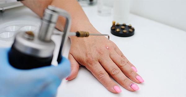 Mennyi ideig tart a műtéti sebek gyógyulása?
