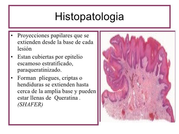 papilloma orrpatológia