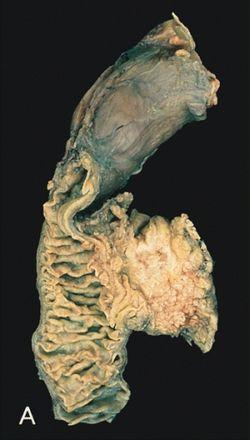 hasnyálmirigy neuroendokrin rák