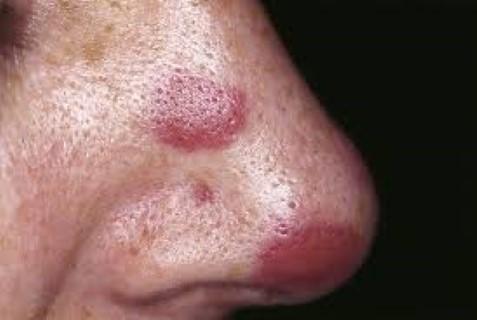 papilloma vírus és tumor