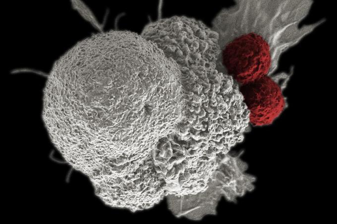agresszív rák nincs kezelés