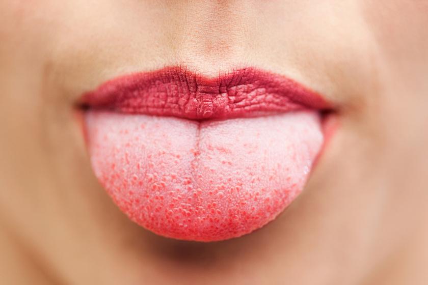 papilloma rák száj hosszú csíkhossz