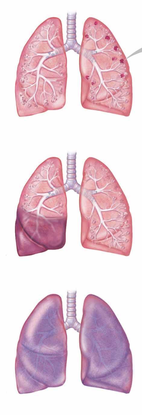 légzési papillomatosis mennyire gyakori