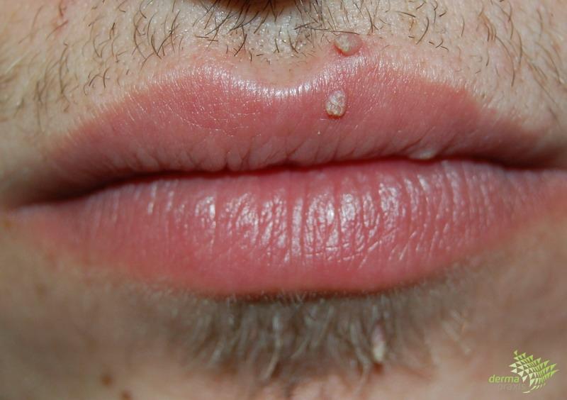 a hpv genitális szemölcsök rákot okoznak-e