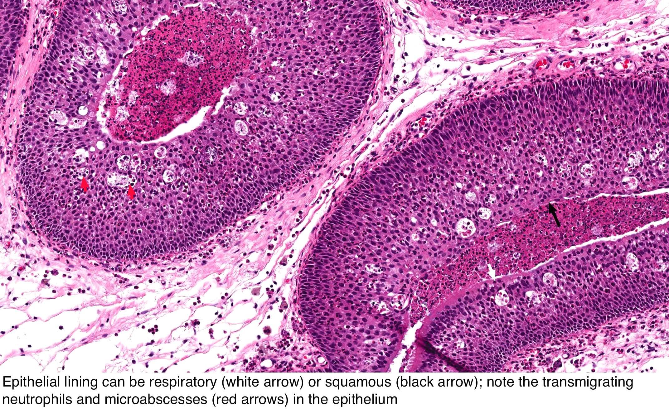 sinonazális papilloma dysplasia fordított orr-papilloma kezelés