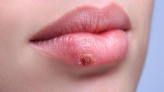 a giardiasis tünetei serdülőknél a hpv torokrákot okoz-e