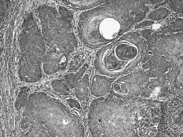 hpv rákig ként a paraziták kezelésében