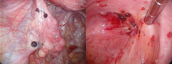 condyloma a méhben gyógyszerek a hüvelyi genitális szemölcsök kezelésére