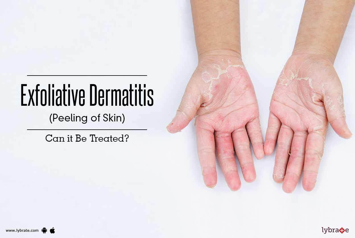 exfoliatív dermatitis