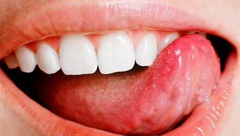 rák a száj tetején