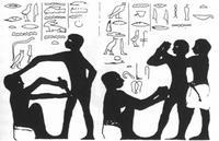 körülmetélés és condyloma