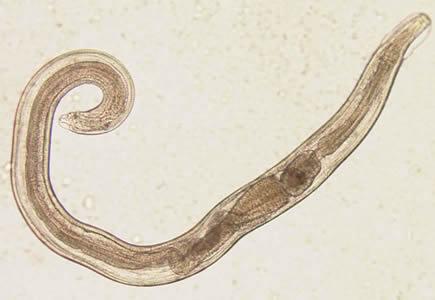 gejala enterobiasis