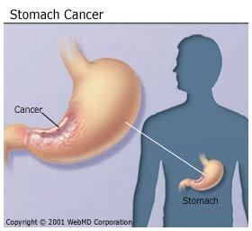 A rák nem fertőz, de tartós fertőzés okozhat rákot | Rákgyógyítás