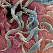 Ciri hewan nemathelminthes. Hewan nemathelminthes adalah, Pinworms a tüdőben és az orrban