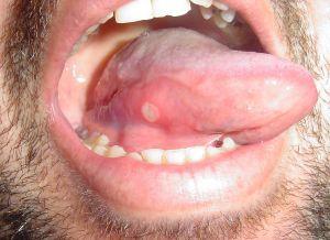 a giardia vírus tünetei