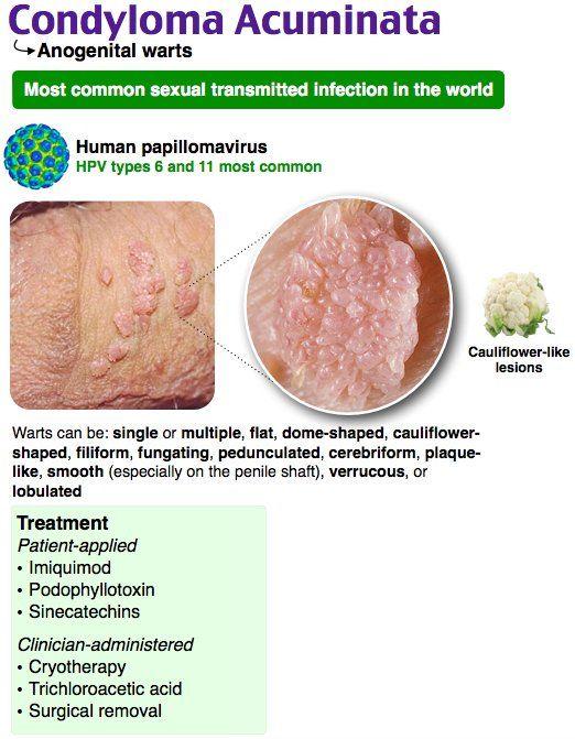 hpv 6 11 condyloma a szervezet parazitáinak kezelésére szolgáló gyógyszerek