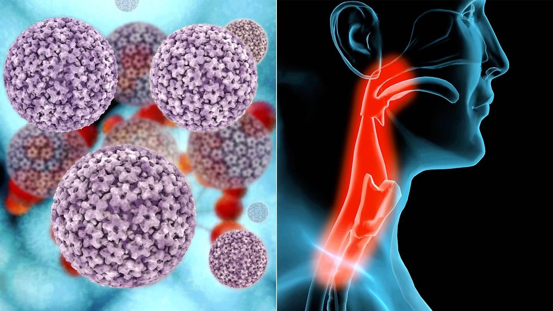 hpv pozitív nasopharyngealis rák