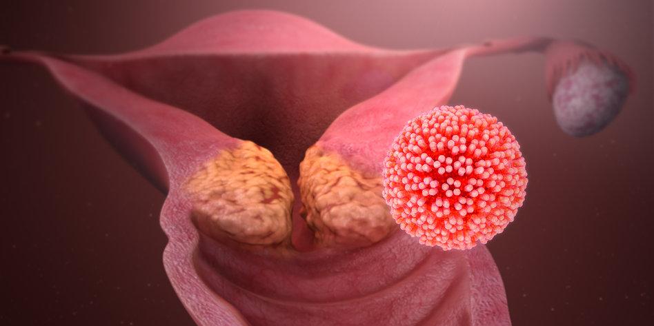 hpv endometrium rák