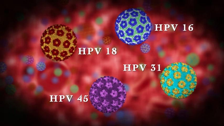 humán 45. típusú papillomavírus a hpv fájdalmat okoz
