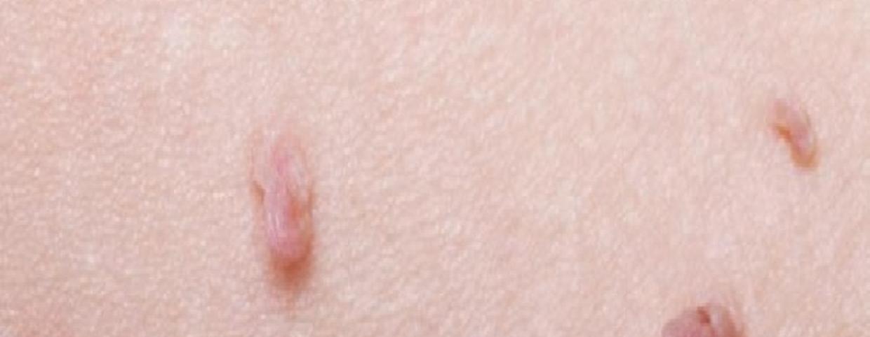 hónalj papilloma kezelése