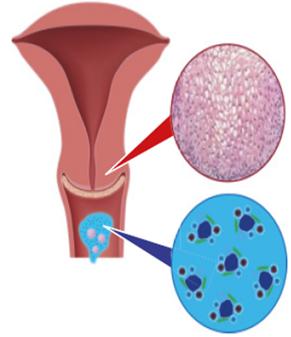 HPV fertőzés és kezelése