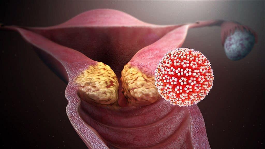 papilloma vírus prosztata ember