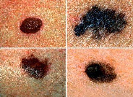 papilloma vs bőrrák a legjobb helmint gyógyszerek