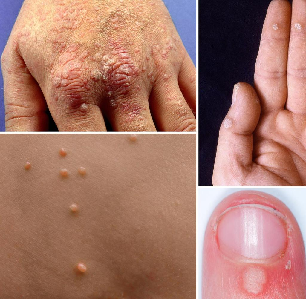 Enterobius vermicularis kezelese, Rimedi naturali per ossiuri