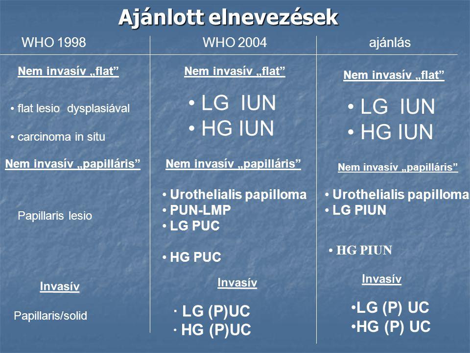 a hólyag papilláris urothelialis daganata)