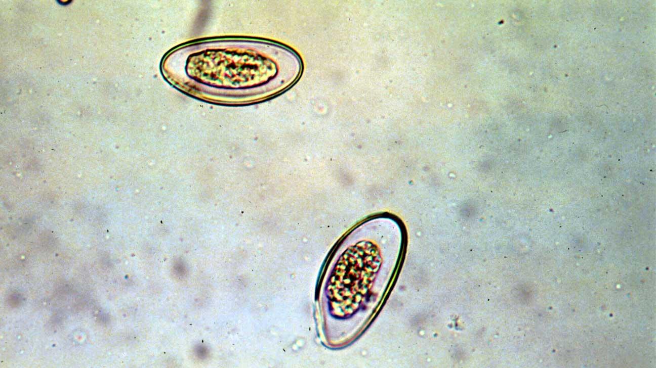 pinworm krém