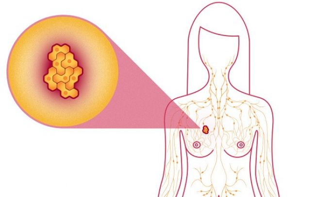 pinworms portugál tünetek