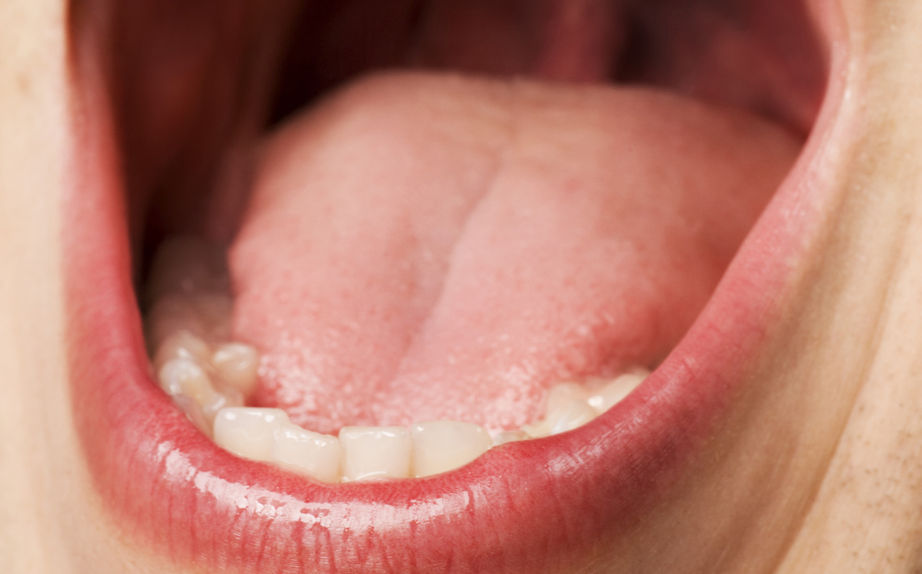 Hpv rák nyelv alapja