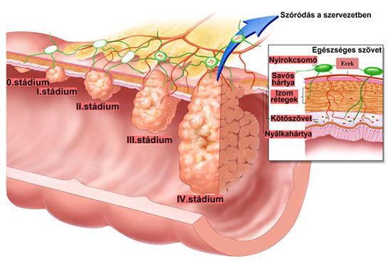 Csökkentik a vastagbélrák visszatérésének esélyét a csonthéjas magvak