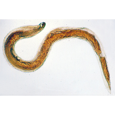 enterobius vermicularis parazitológia a lenyelés diagnózisa