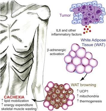 szklerózisos papilloma patológia