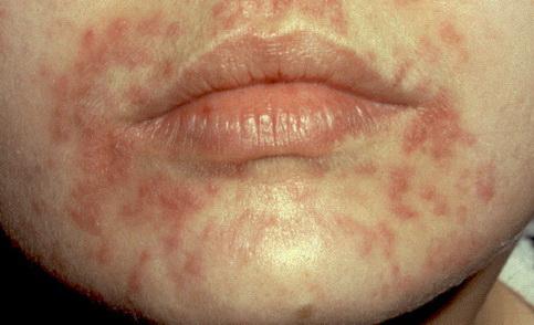 HPV fertőzés - Humán Papillóma Vírus - Dimenzió egészségközpont | Központban az EGÉSZSÉG