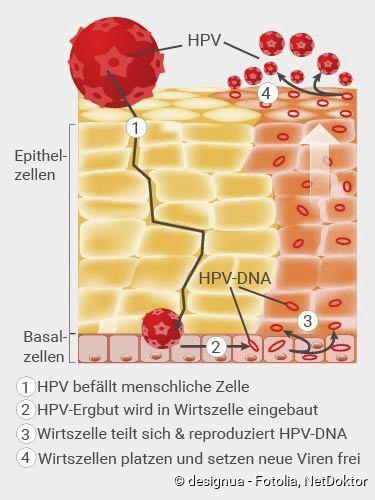 a humán papilloma vírus áttekintése