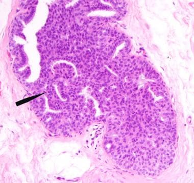 Intraductalis papilloma atipikus ductalis hyperplasia