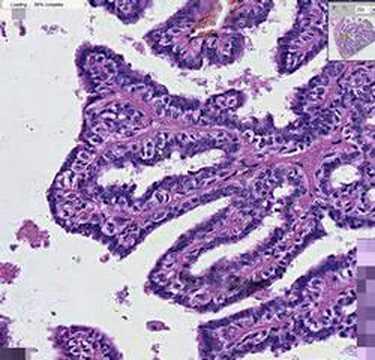 intraductalis papilloma és tabletta