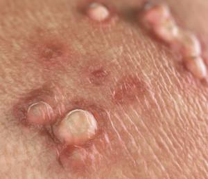 Hpv virus vaccine age limit Hpv virus mann juckreiz Hpv virus jucken