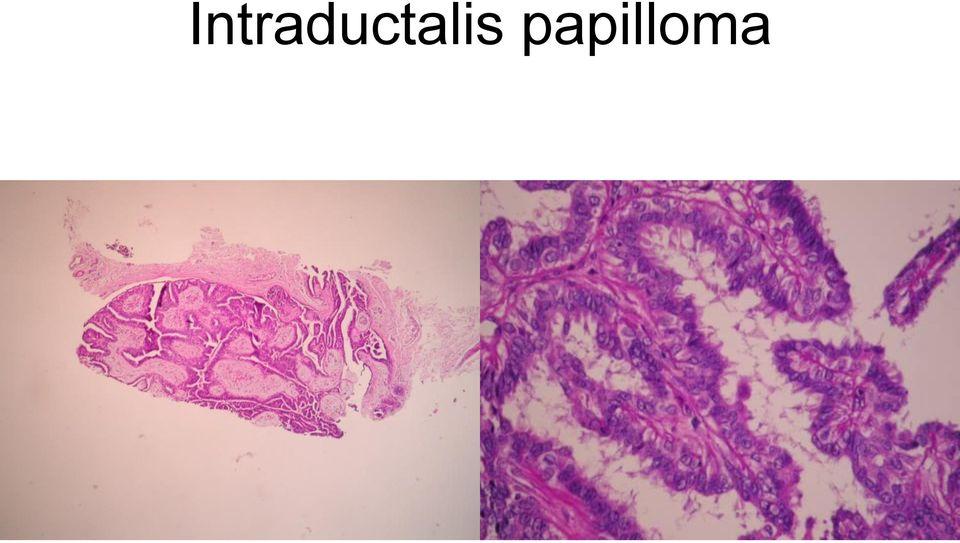 típusú papillómák az arcon kenje be az enterobiosist, hogy mennyit csinálok
