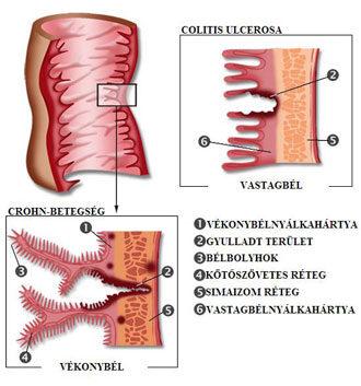 a helmintusok megelőző gyógyszere rögzített Trichomonas mi az