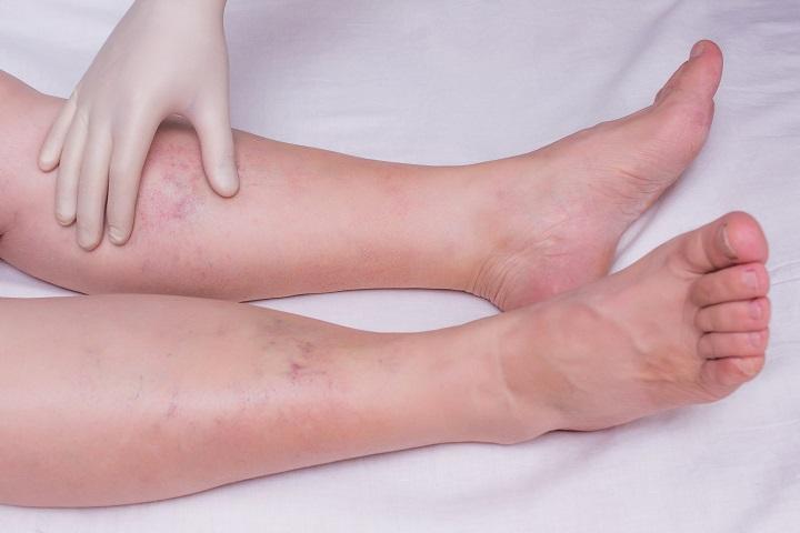 Szarkóma rák gyógyulása. A Kaposi-szarkóma tünetei és kezelése