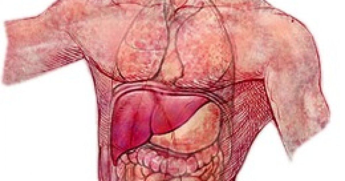 májrák és terhesség