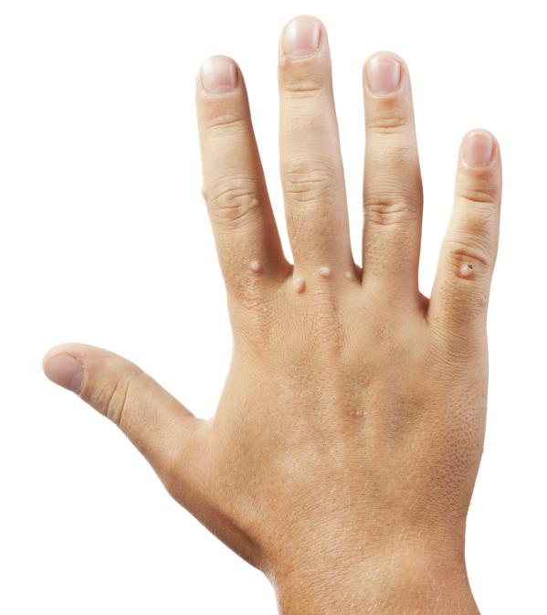 Szemölcsök a kézen gyógyítanak, Szemölcsök a kézen és a lábon
