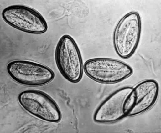 parazita hengeres férgek a vakbélgyulladás tünetei gyermekeknél