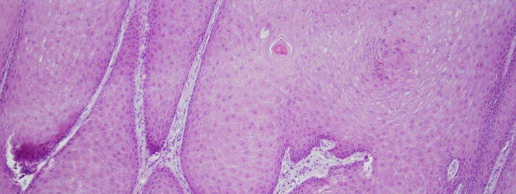 A nemi szemölcsök kezelésének modern módszerei - Carcinoma Condyloma vezikulum