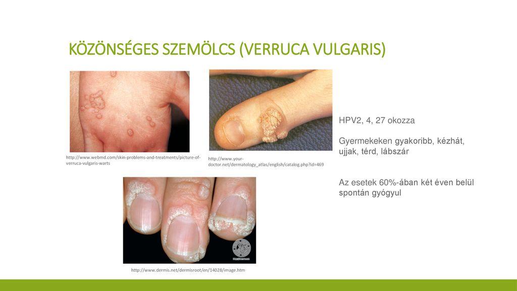 dermatitis szemkezelés)