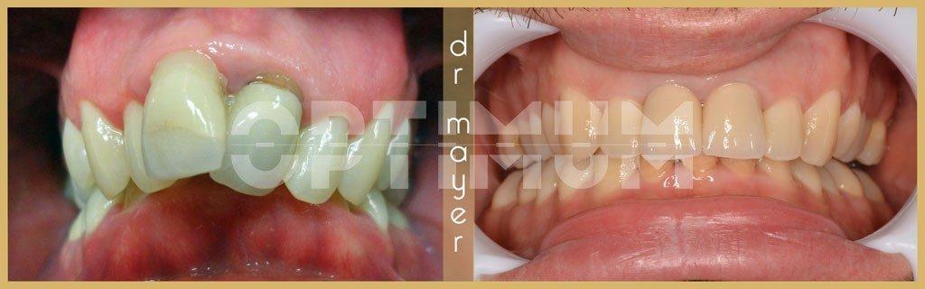 mi a nemi szemölcsök eltávolításának kriodestruktúrája intraductalis papilloma szövettan